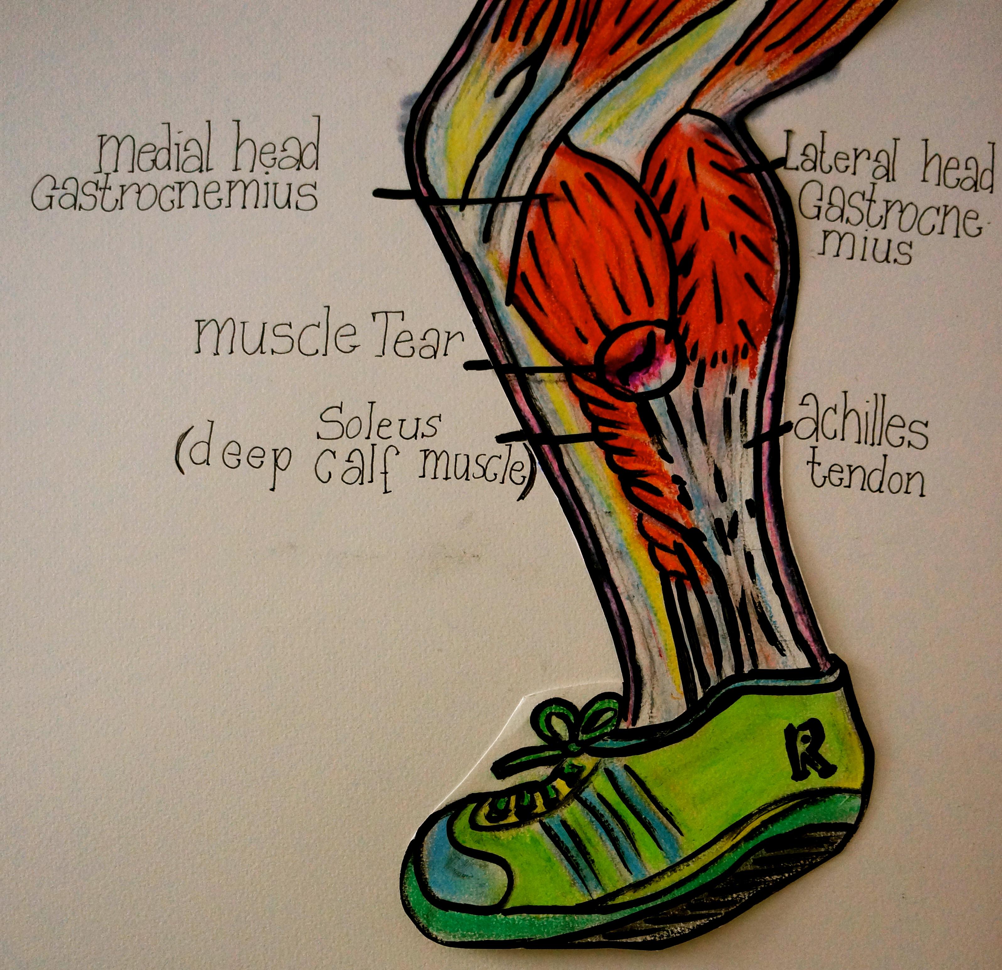Muscle Tear In The Calf Physio Erinn
